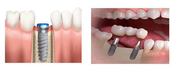 tru implant 2